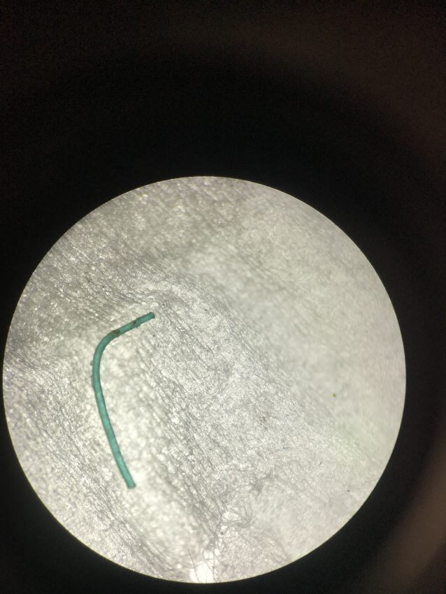 Microscopic image of a fishing line found in the gastrointestinal tract of a Bahamian fish.